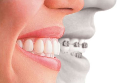 aparelho dentario porto alegre
