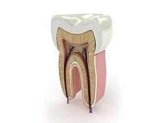 tratamento endodontico