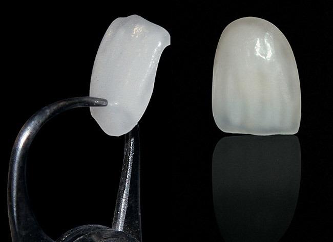lentes de contato dentais preços