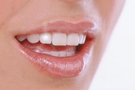 piercing dental preço
