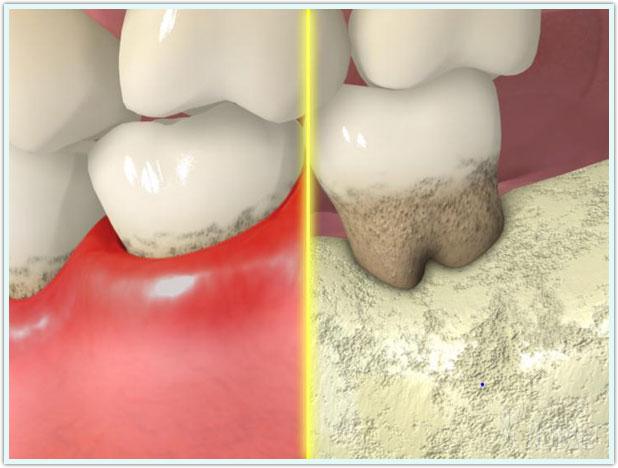 periodontite moderada