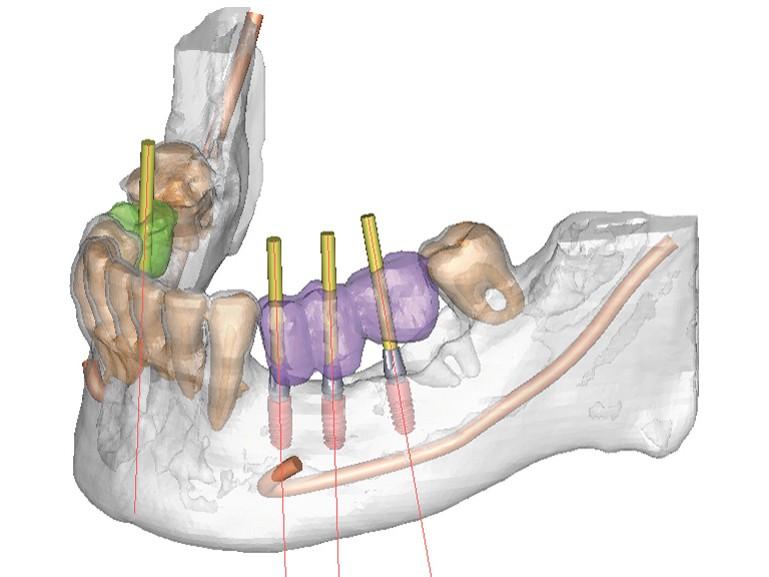 planejamento cirurgia guiada