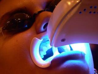 clareamento laser em porto alegre