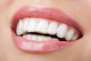 claremento dental moldeira