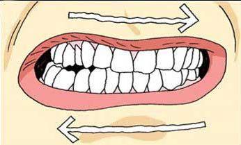 ranger o dente