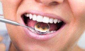 sorriso com aparelho lingual