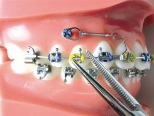 implante ortodôntico porto alegre