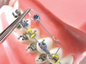 implante ortodôntico no modelo