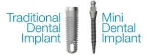 mini implante dental versus tradicional