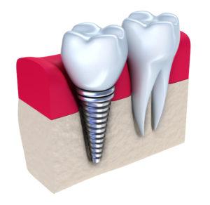implantodontista em Porto Alegre