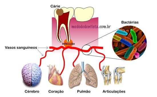 problemas decorrentes de infecções dentárias