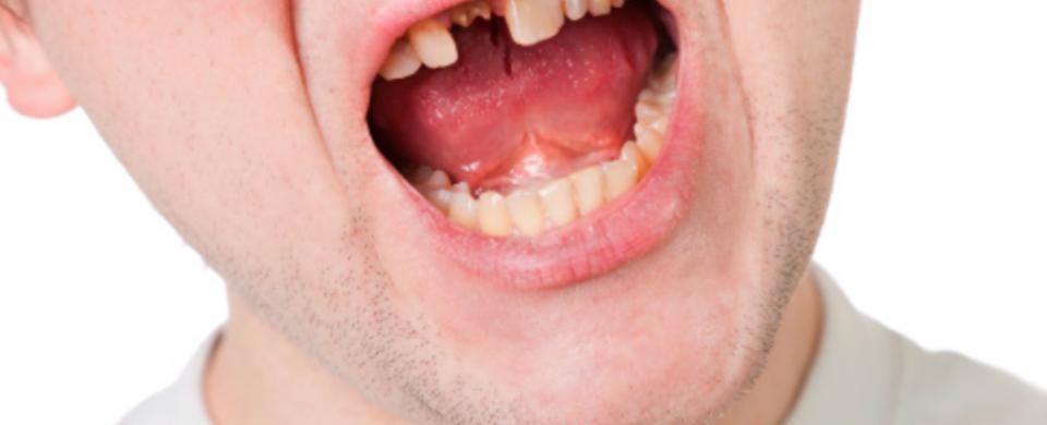 fratura dentária