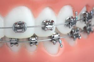aparelho ortodontico fixo