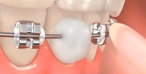 cera ortodontica