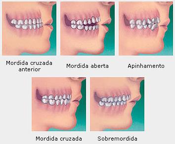 problemas aparelho ortodontico