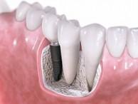 Implantes dentários e o sorriso de volta