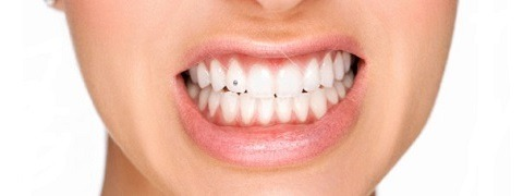 piercing dental - twinkle