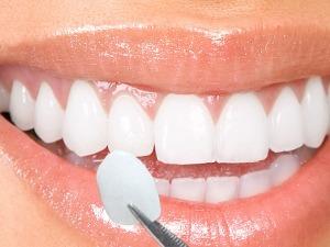 lente contato dental porto alegre