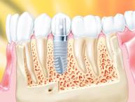 Cirurgia Guiada – Implantes