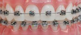 Extrair dentes na ortodontia?