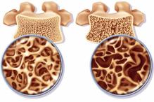 Osteoporose Vs. Implantodontia
