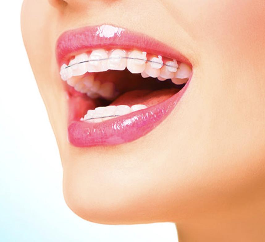 aparelho estético com dentista ortodontista na clínica dentária