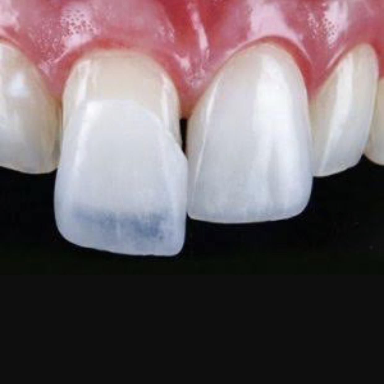 melhor dentista para lentes de contato dental em Porto Alegre