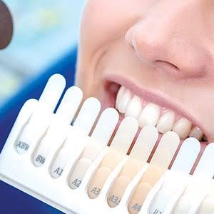 clareamento dental na melhor clínica odontológica