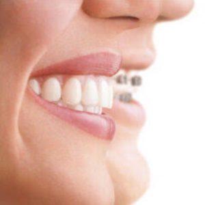 clínica odontológica para aparelho dentário invisível Invisalign