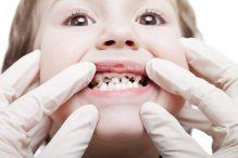Bactérias cromogênicas – Manchas escuras nos dentes