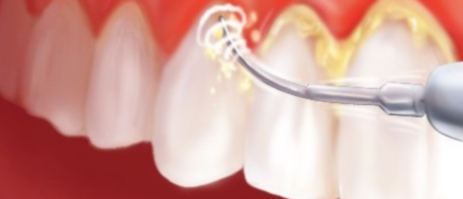 cálculo dental