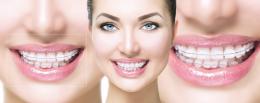 aparelho dental: vantagens e cuidados