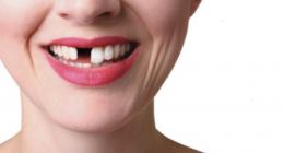 Falta de dentes? Como a boca reage