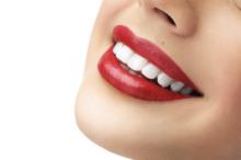 Lentes de Contato nos dentes: Vantagens de usar