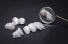 Lentes de Contato Dental: Beleza e Proteção para os Dentes