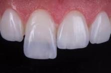 Lentes de contato dental: Conheça o método e saiba pra quem é indicado