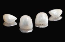 Lente de Contato Dental: O que é verdade e o que não é!