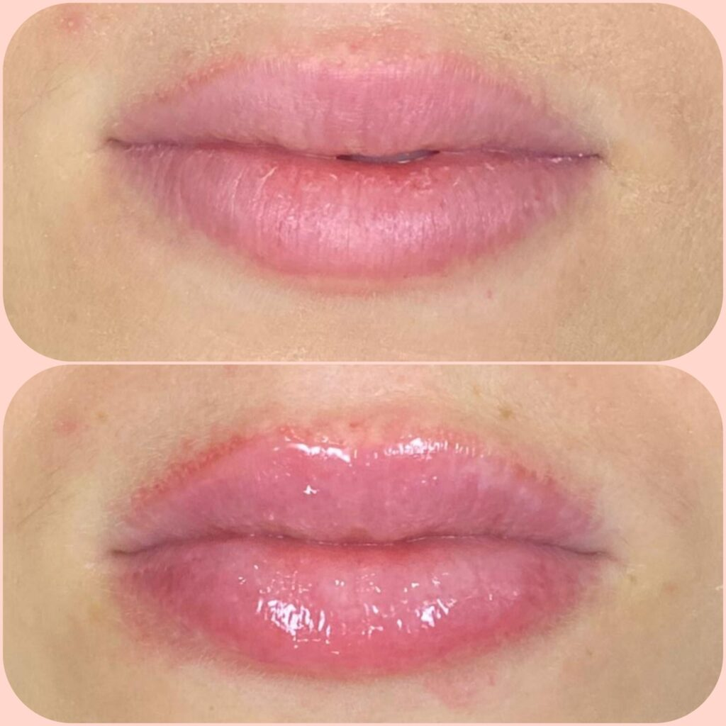 hydra gloss lips